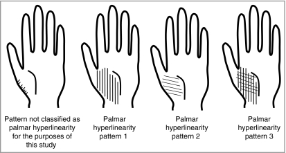 palmar hyperlinearity