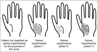 palmar hyperlinearity