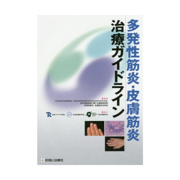 皮膚筋炎ガイドライン