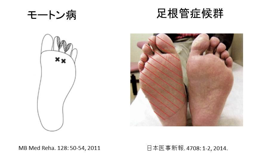 モートン病と足根管症候群