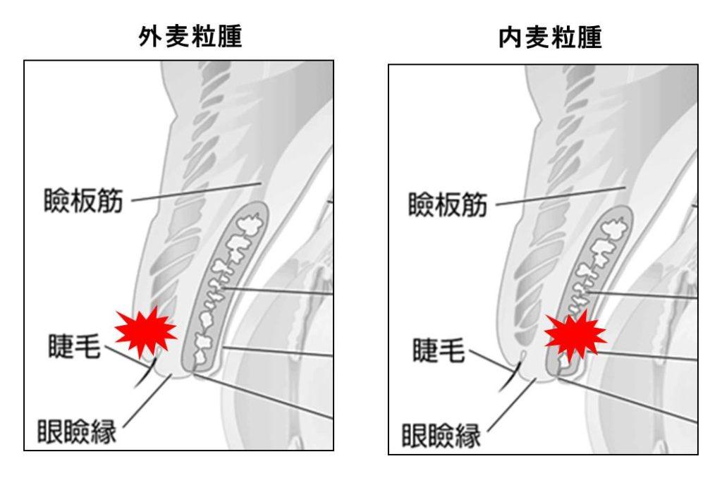 内麦粒腫と外麦粒腫の図