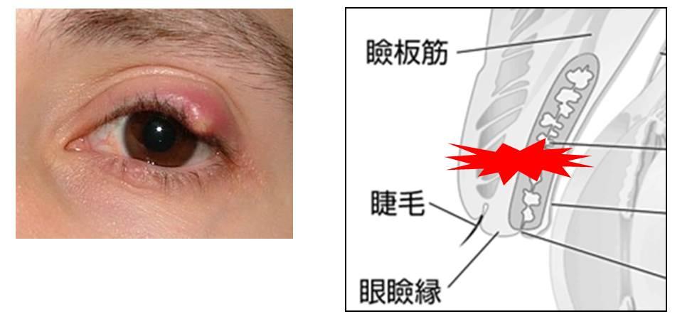 麦粒腫と霰粒腫の見分け方