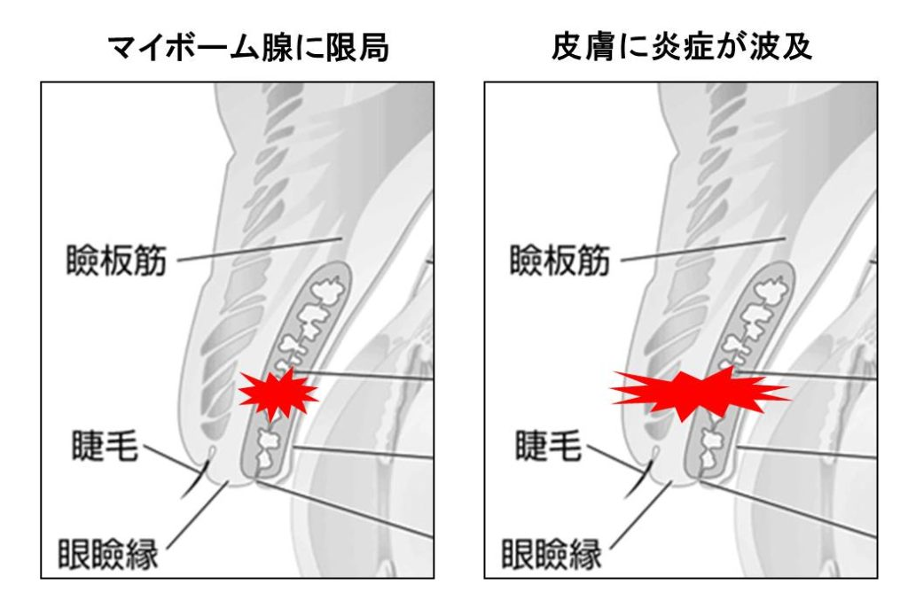 霰粒腫の図
