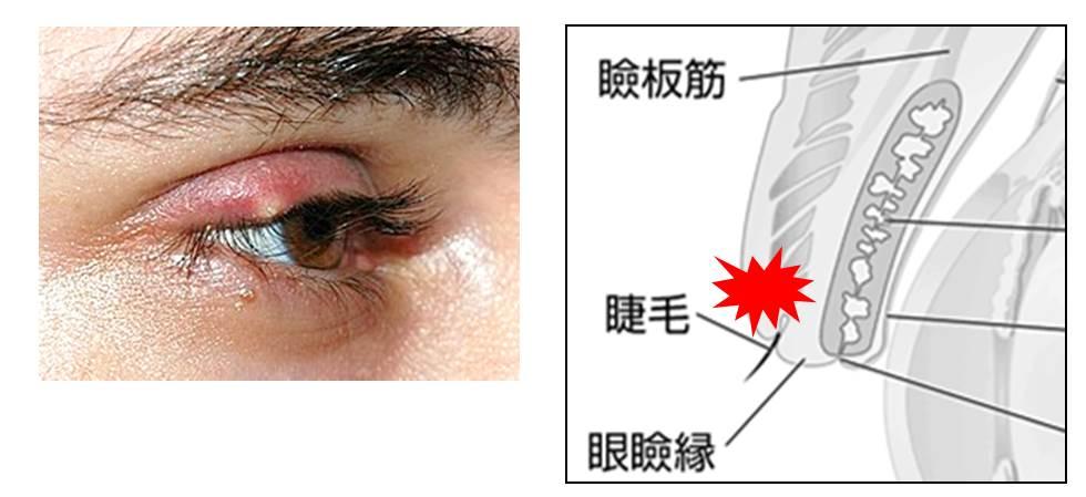 麦粒腫と霰粒腫の鑑別の図