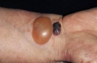 類天疱瘡の症状の写真