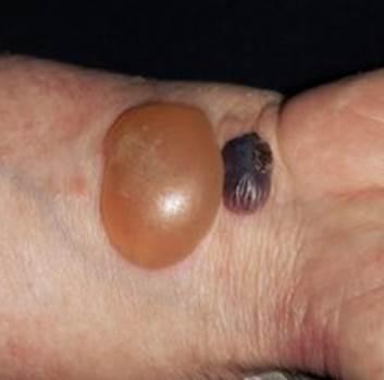 類天疱瘡の写真