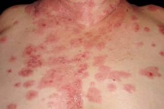 類天疱瘡の診断の図