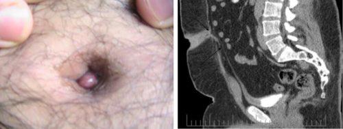 尿膜管遺残の図