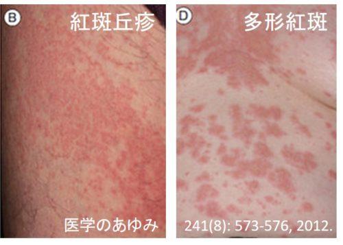 薬疹の解説図